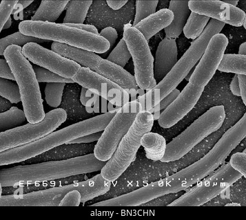 Escherichia coli  Wikipedia